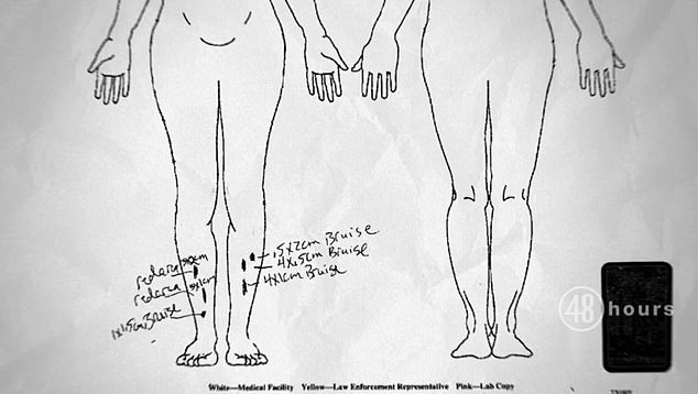 A diagram shows the numerous injuries to Cayley Mandadi's face and body