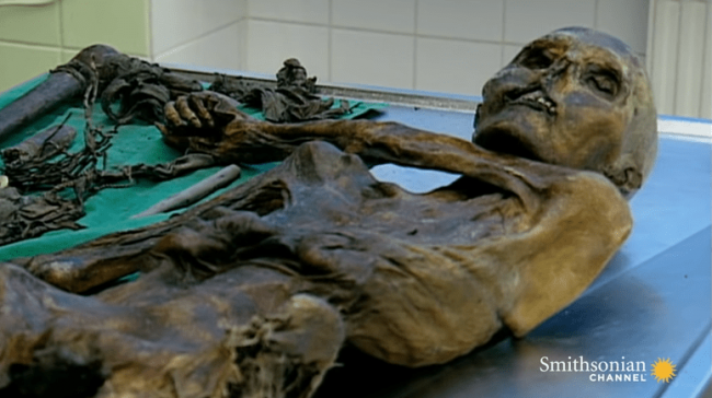 The body of the Ötzi the Iceman laying in the Swiss lab